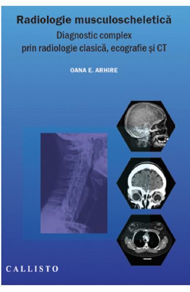 Radiologie musculoscheletica de Oana E. Arhire [0]