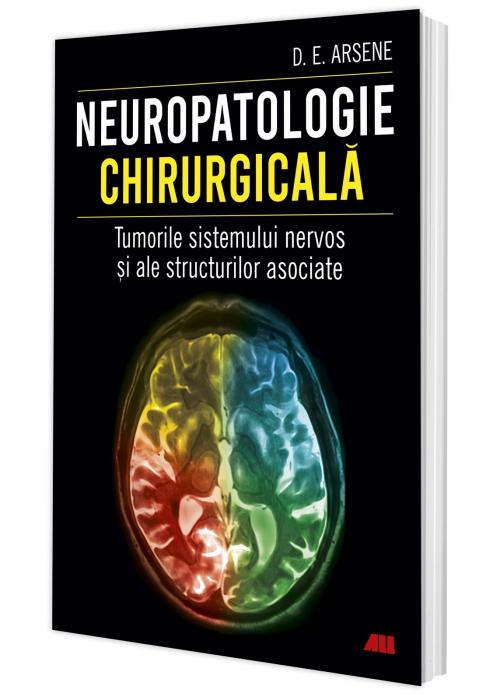 Neuropatologie chirurgicala. Tumorile sistemului nervos si ale structurilor asociate de Dr. Dorel Eugen Arsene [0]