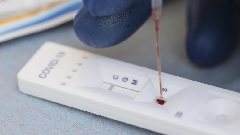Testele rapide sunt recunoscute oficial pentru diagnosticarea COVID-19