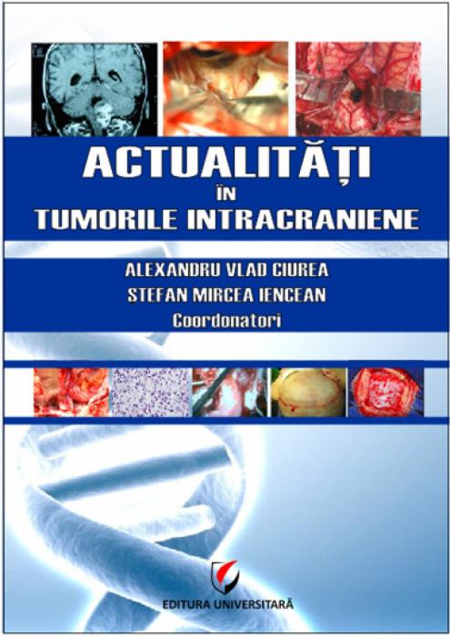 News in intracranial tumors 0