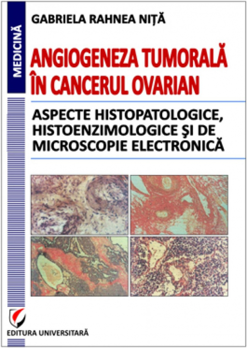 Tumor angiogenesis in ovarian cancer. Histopathological, histoenzimological and electron microscopy aspects [0]