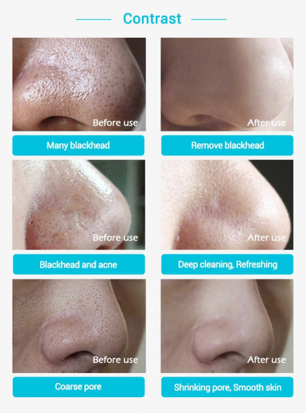 Masca pentru nas, tratament puncte negre, acnee 7