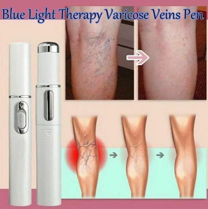 Dispozitiv cu lumina laser pentru tratarea varicelor si acneei, GMO, BlueLight Therapy, alb [5]