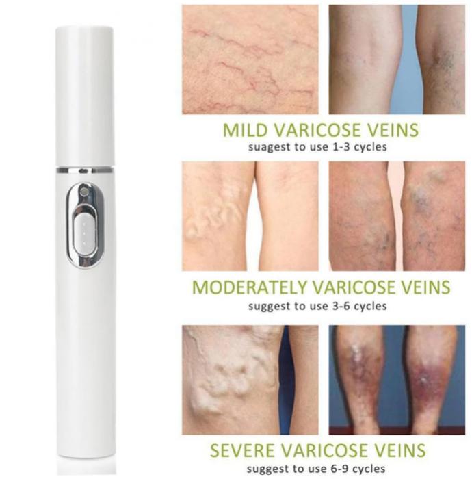 Dispozitiv cu lumina laser pentru tratarea varicelor si acneei, GMO, BlueLight Therapy, alb [3]