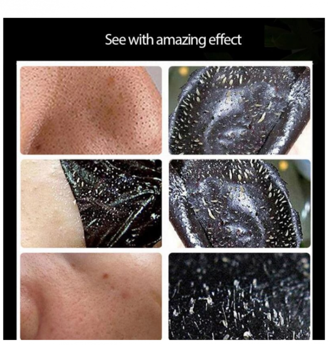 Masca neagra pentru fata impotriva cosurilor si punctelor negre, GMO, Bioaqua, 50 ml [5]