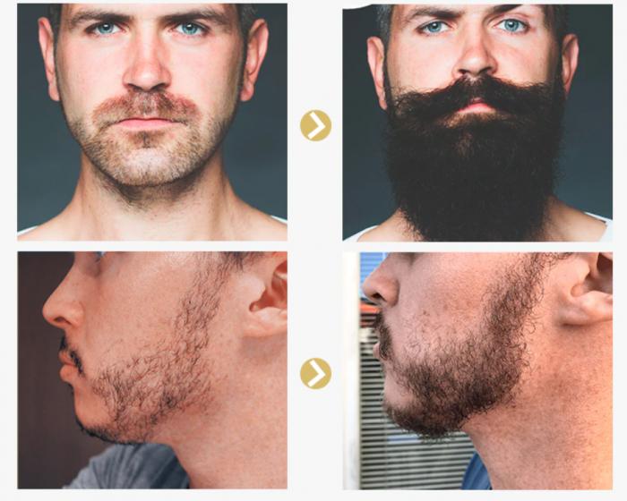 Ulei pentru cresterea barbii, GMO, Pure Growth [3]