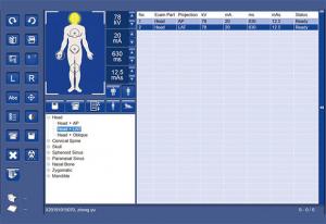 Sistem de scanare cu raze X SR-1000 Touch [10]