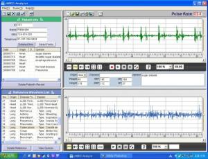 Stetoscop electronic Jabes3