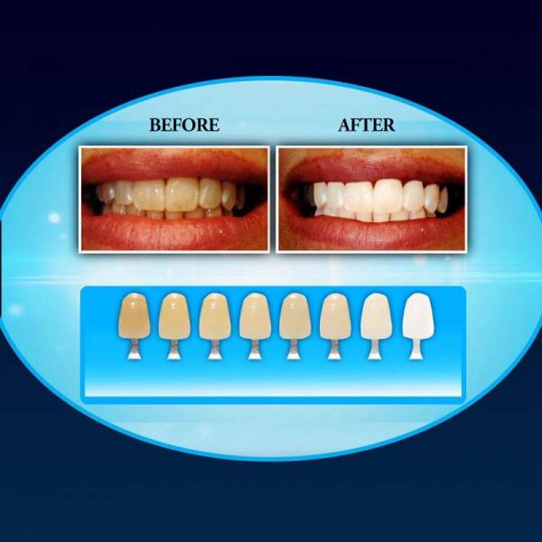 Aparat Pentru Albirea Dintilor – 20 Minute Dental White 3