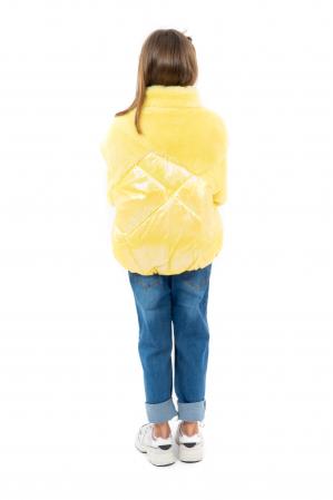 Jachetă Lucioasă cu Puf [2]