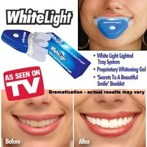 Set pentru albirea dintilor White Light 1