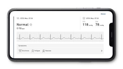 TENSIOMETRU-OMRON-COMPLETE-ECG-ekg-VALIDAT-CLINIC-FUNCTIE-AFIB-electrocardiograma