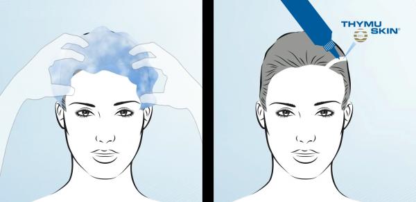 THYMUSKIN MED Sampon tratament, Caderea moderata, Alopecia areata si difuza 1