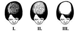 Alopecia la femei Onconect