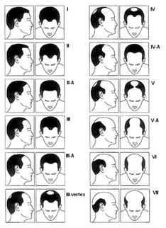 Alopecia areata la barbati Onconect
