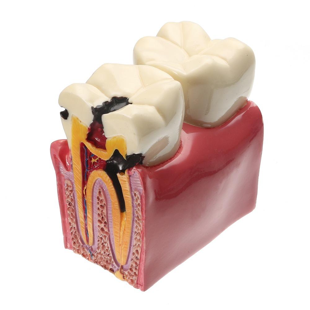 Cum apar cariile dentare și cum îți poți da seama de prezența acestora