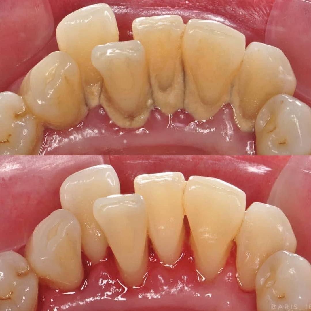 Detartrajul - pentru sănătatea orală
