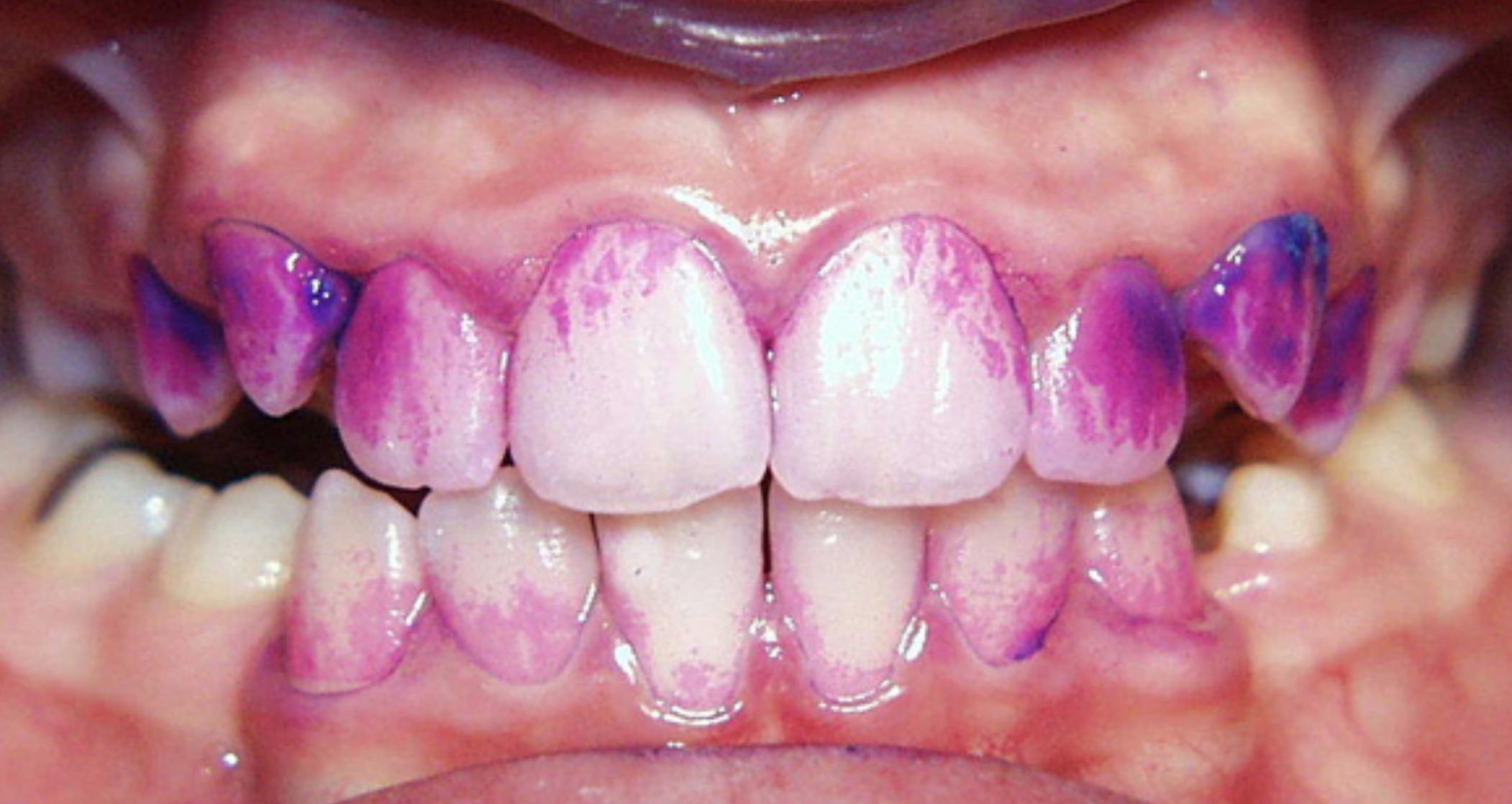 Revelatorul de placă bacteriană ghidează curățarea eficientă a dinților