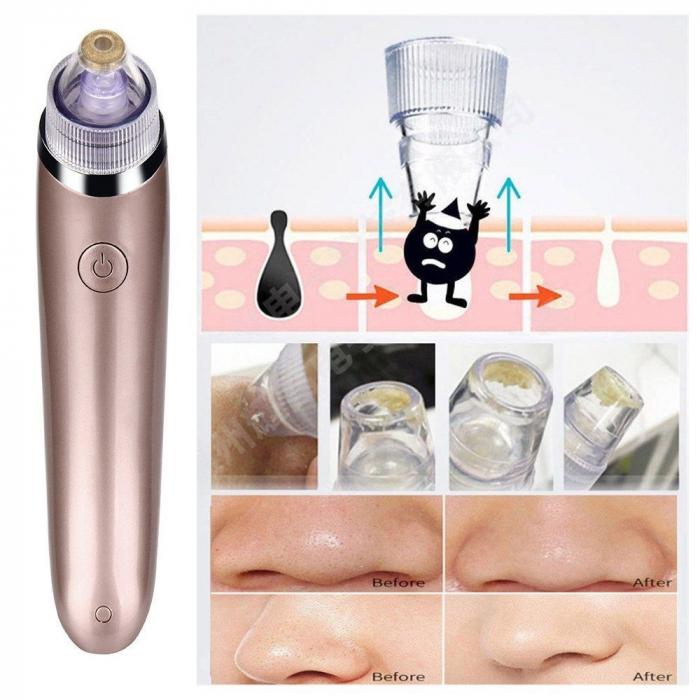 Aparat Vacuum Presure Cleaner,curatare ten,acnee,pori,puncte negre [9]