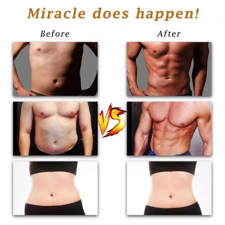Stimulator Muscular Electric, EMS, Slabit si pus masa musculara, Brate si abdomen [4]