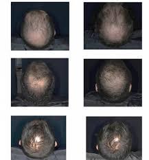Tratament Crinovital Anti Cadere, Sampon 1000 ml. + Ser 12 fiole de 8 ml.3