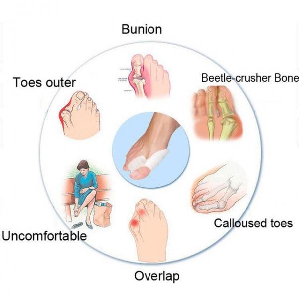 Separator si protectie dublata degetelor - ORTO10 3