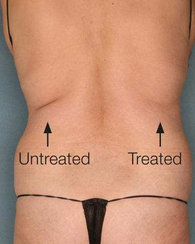 Pachet Tratament Celulită VelaShape III 3 + 3 GRATIS 4