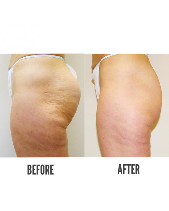 Pachet Tratament Celulită VelaShape III 3 + 3 GRATIS 3