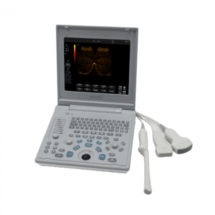 ECOGRAF TIP LAPTOP, SS-6B B/W scanner | Totalmed Aparatura Medicala [0]