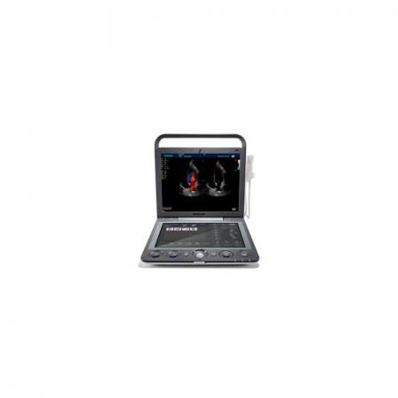 Ecograf portabil cu Doppler Color SONOSCAPE S90