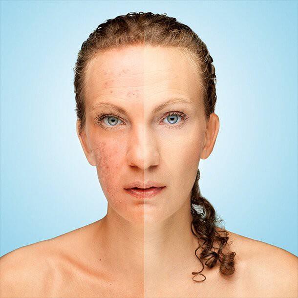 cbd pentru afectiuni piele acnee psoriazis neurodermatita