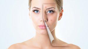 Cum obținem o piele fara cusur