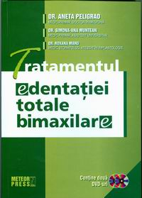 Tratamentul edentatiei totale bimaxilare [0]